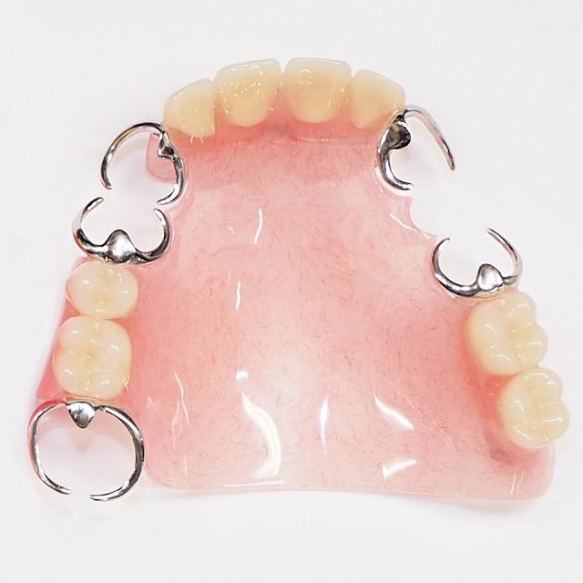 dentureimage