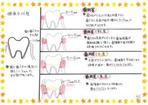 歯肉炎について